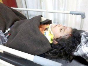 Kurbanlık koç beş yaşındaki kızı hastanelik etti