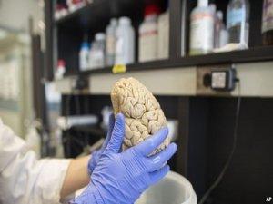Baş travmaları Alzheimer'la ilişkili mi?