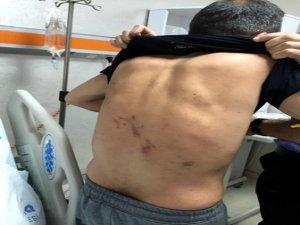 İşadamına karakolda işkenceden 4 polise dava açıldı