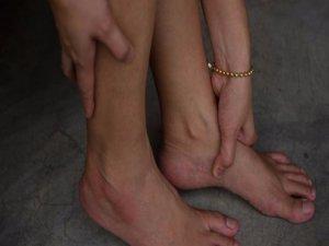 Ayaklardaki şişkinlik için maydanoz kürü
