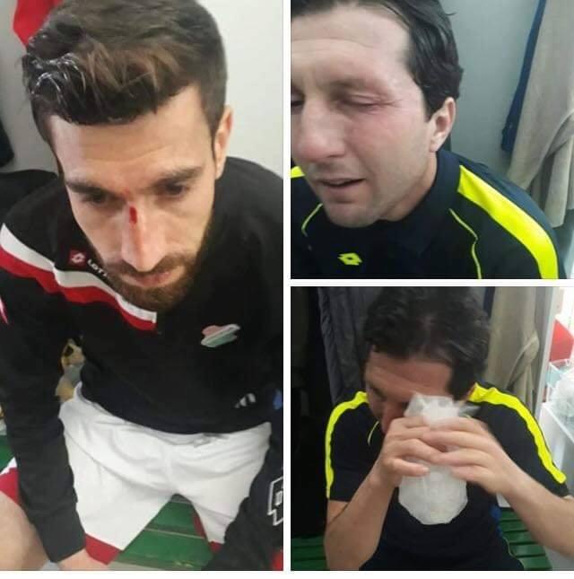 Amedspor ırkçı saldırıyı kınadı!