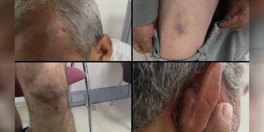 Mağdurlar Halfeti'deki işkenceyi anlatıyor