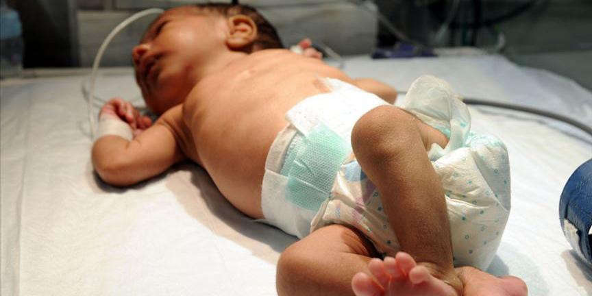 Her yıl yaklaşık 15 bin bebek kalp hastalığıyla dünyaya geliyor