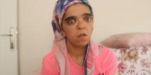 VİDEO- Diyarbakırlı genç kız tedavi için yardım bekliyor