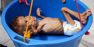 BM: İnsanlar kıtlıktan ot yemeye başladı