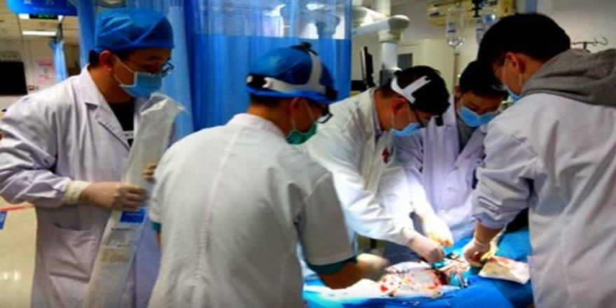 Çin'de kalbi duran biri 72 saat sonra hayata döndürüldü